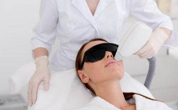 depilação a laser buço