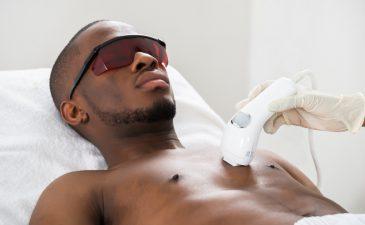 depilação definitiva masculina
