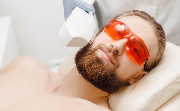depilacao a laser barba