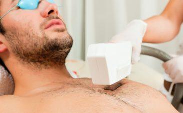 depilacao definitiva peito