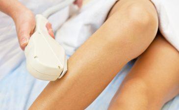 depilação a laser perna