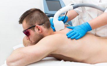 depilação masculina a laser