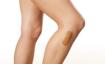 alergia nas pernas após depilação