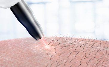 depilação a laser quanto tempo demora para cair os pelos