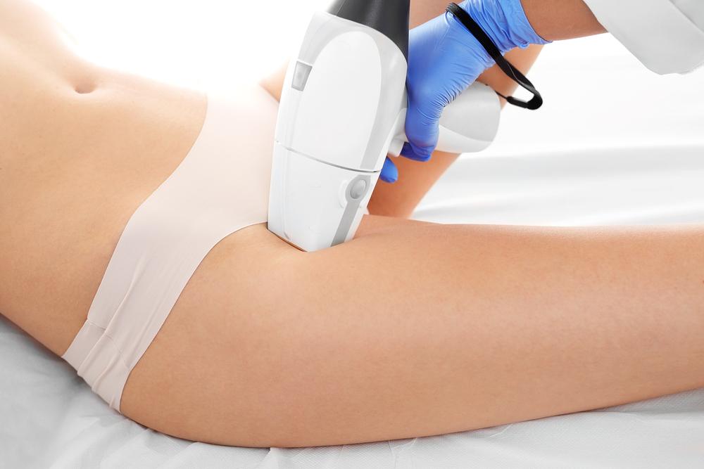 depilação a laser virilha resenha