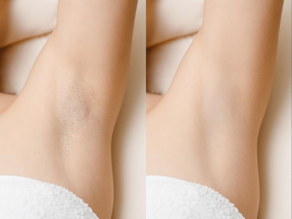 depilação a laser na axilas antes e depois