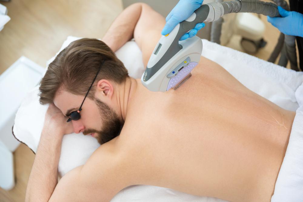 depilação a laser masculina preço