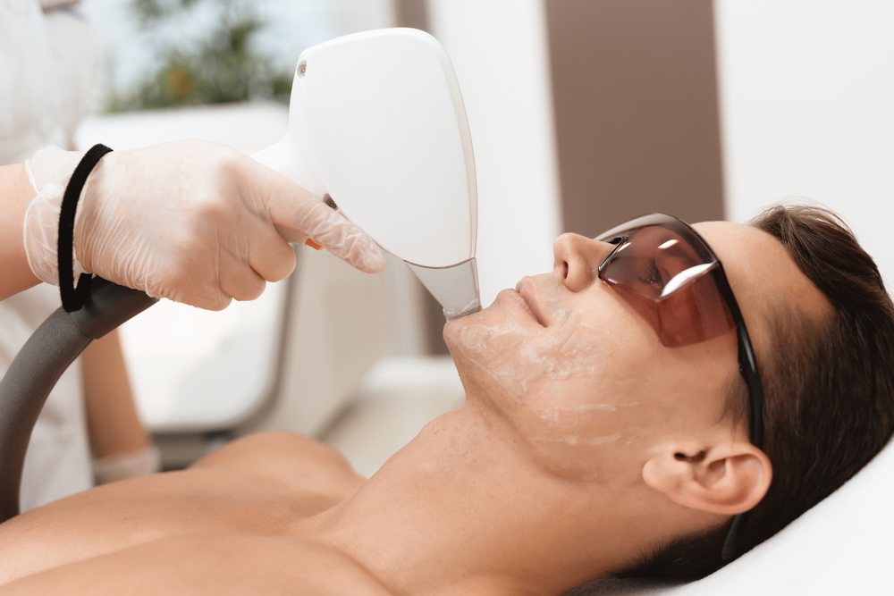 depilação a laser barba preço