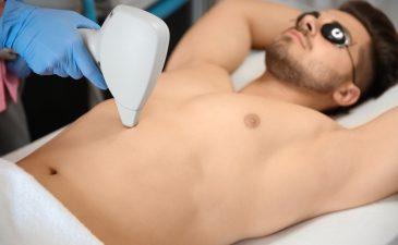 depilação a laser barriga masculina