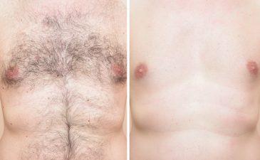 depilação a laser definitiva masculina