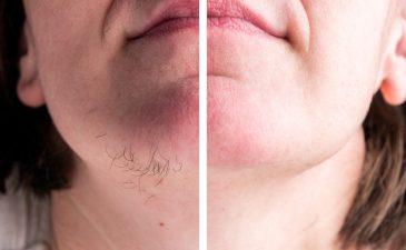 depilação a laser no rosto feminino antes e depois
