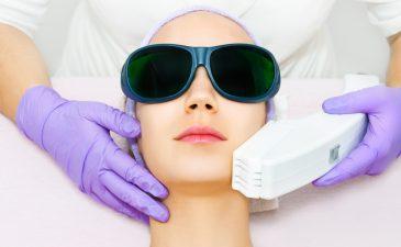 depilação a laser guarulhos