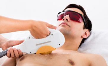 tipos de depilação masculina