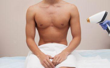 depilação a laser masculina corpo inteiro