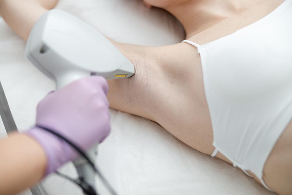 depilação a laser votuporanga