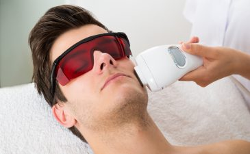 depilaçao a laser no rosto masculino