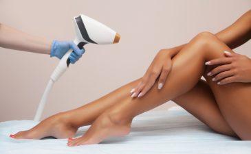 qual o melhor tipo de laser para depilação definitiva