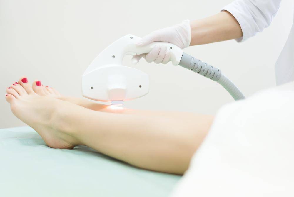 depilação a laser duração
