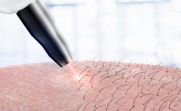 laser de depilação