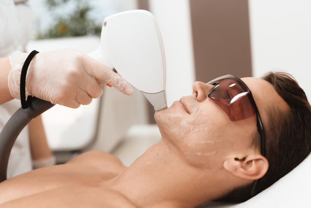 depilação de barba a laser