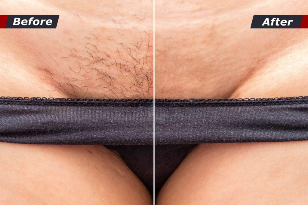 quantas sessões você precisa para uma depilação a laser